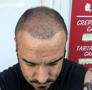 implante-pelo-turquia-espana-resultados