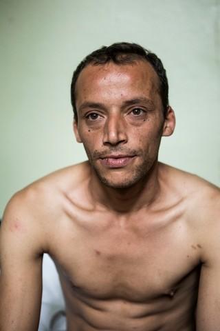 Sofian kommt aus Nordafrika, er hat eine langjährige Odysee durch viele Länder Europas hinter sich. Sein Körper ist übersäht mit Narben - sie stammen nicht aus dem Krieg, sondern sind Spuren von europäischer Polizeigewalt. Foto: Florian Büttner