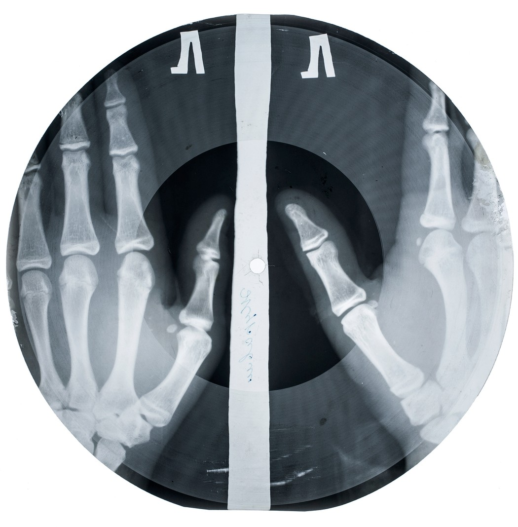 1501191195045-Bone-Disc-1.jpeg?resize=10