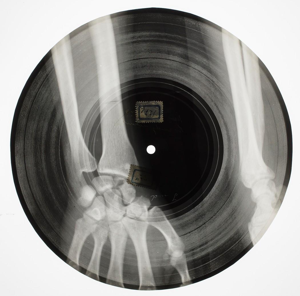 [Image: 1501191294248-Bone-Disc-4.jpeg?resize=1050:*]