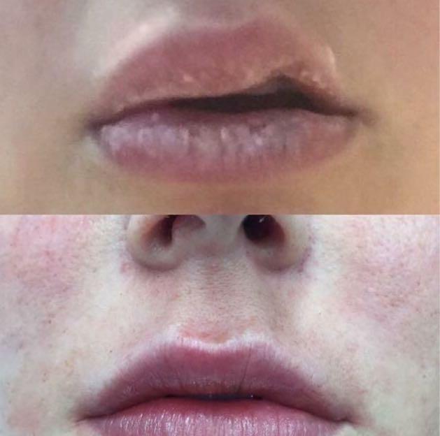 reacción alérgica en la cara y labios hinchados