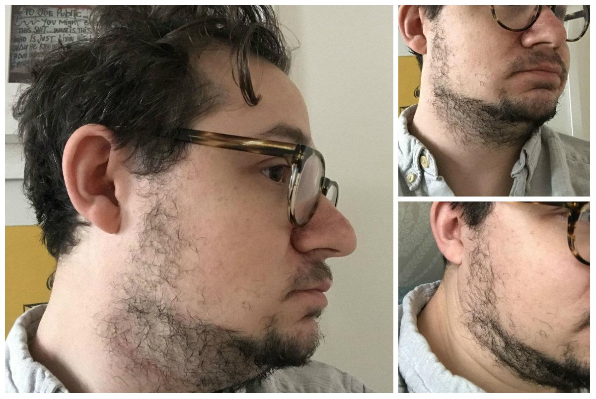 få skæg på kinderne