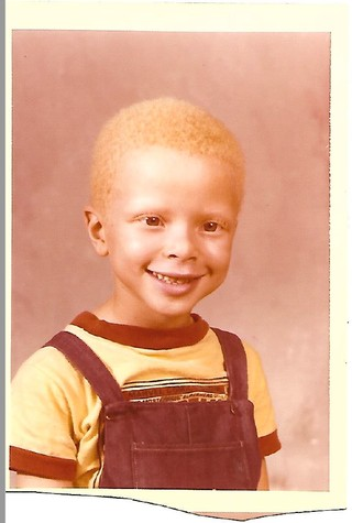 Albinos Black what growing up as a black albino taught me - vice