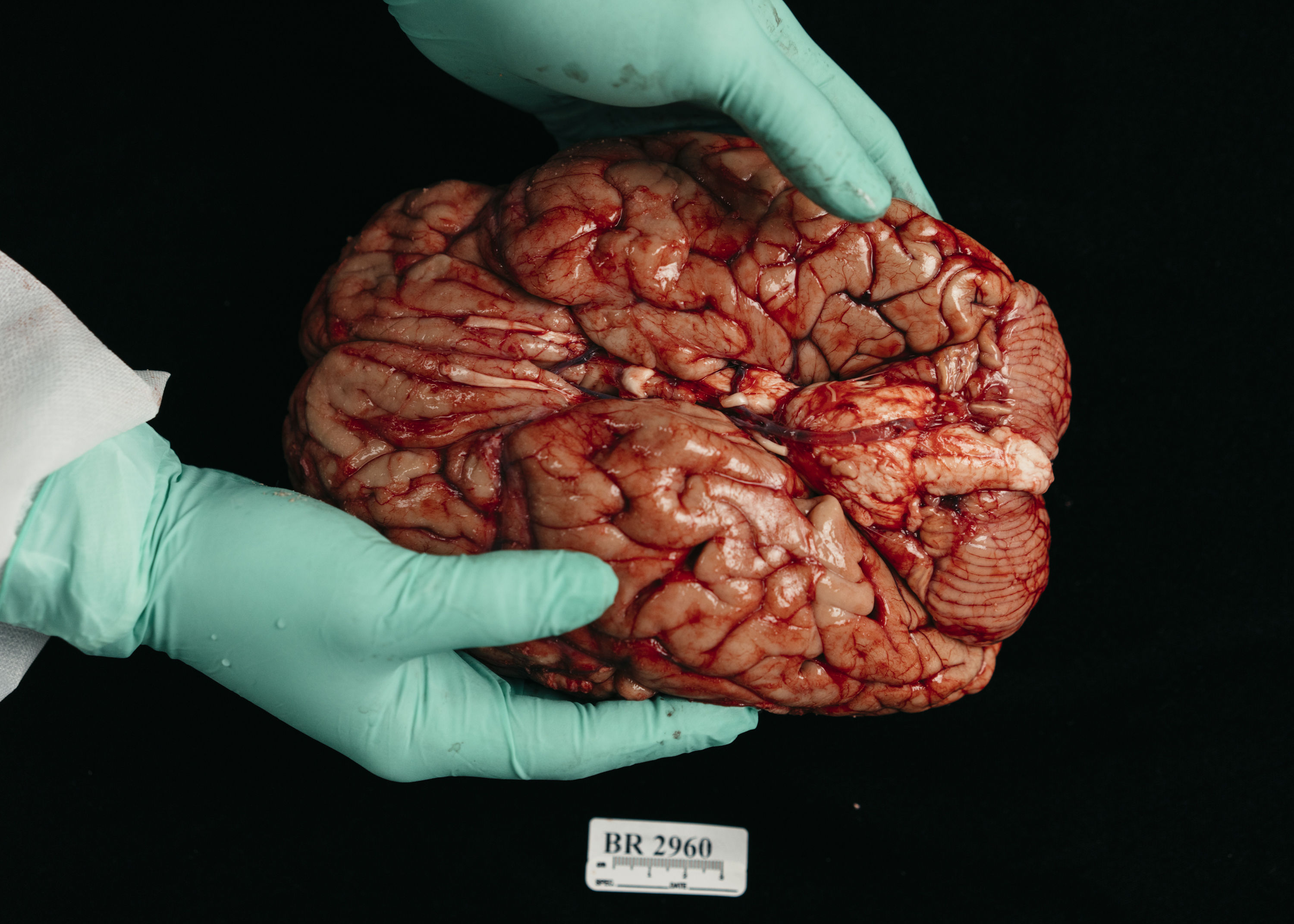 Mental Health Research Needs More People To Donate Their Brains Tonic