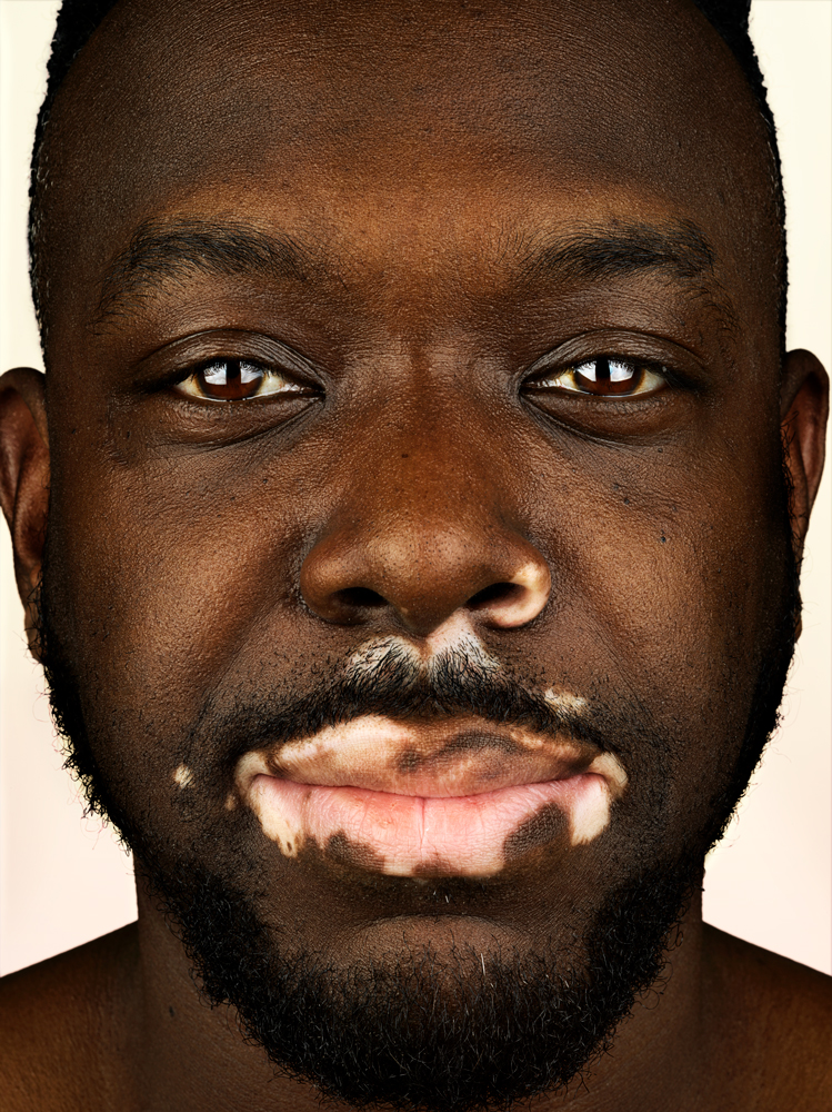 This Photographer Is Shooting Almost 100 People With Vitiligo I D