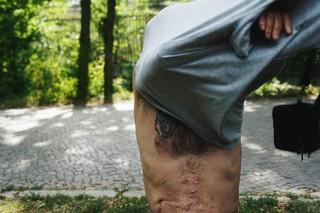 Ein Mann sieht sich sein T-Shirt über den Kopf, auf seiner rechten Brust trägt er ein Tattoo, darunter spannt sich eine breite Narbe
