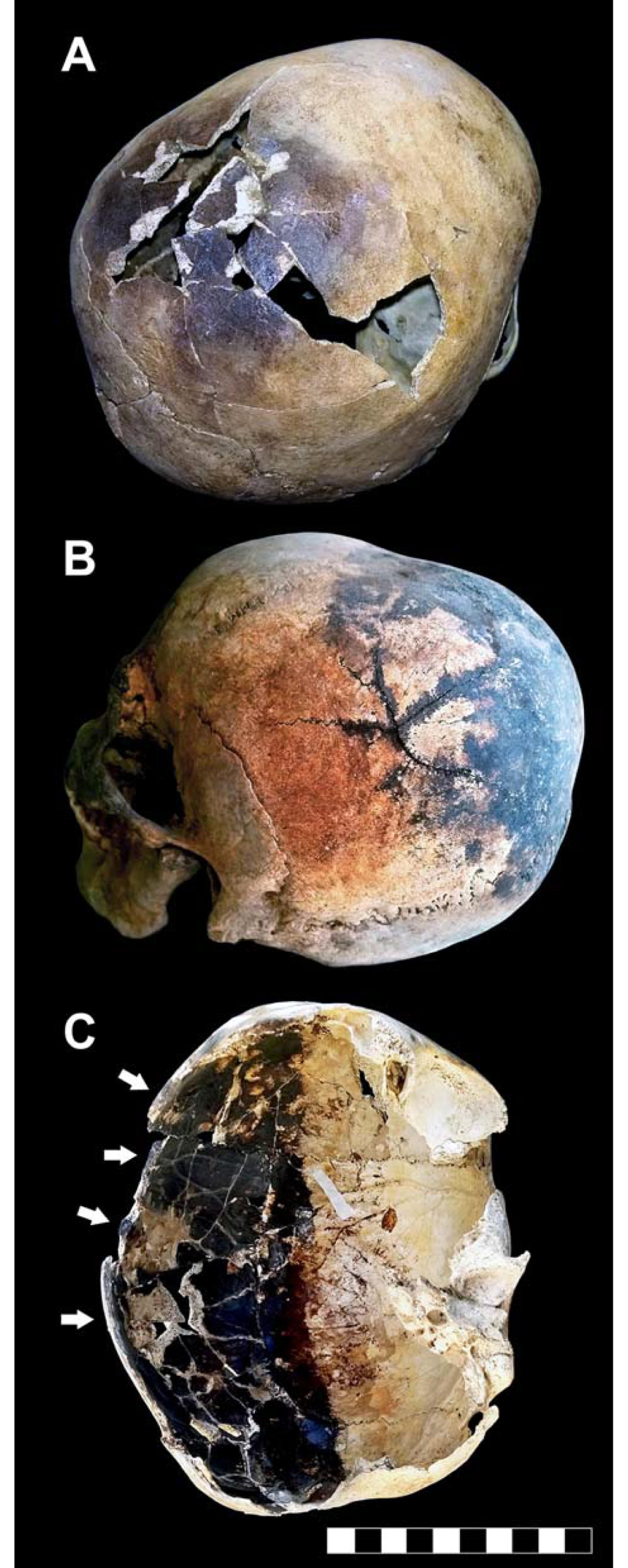 Bruchstellen an den Schädeln, die in Herculaneum gefunden wurden.