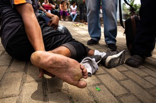 Miguel Hernando, 27, examines his foot after walking 3 days up and down the mountains from the Venezuelan-Colombian border. Photo by Pu Ying Huang