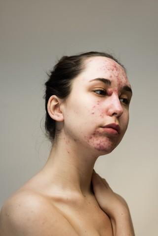 Epidermis by sophie harris taylor