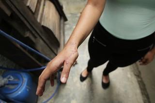 Maria zeigt ihre vernarbte rechte Hand, die die Kugel damals traf