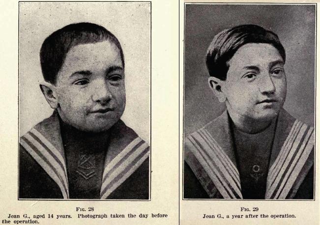Pasien Voronoff sebelum dan setelah menerima cangkok organ hewan.
