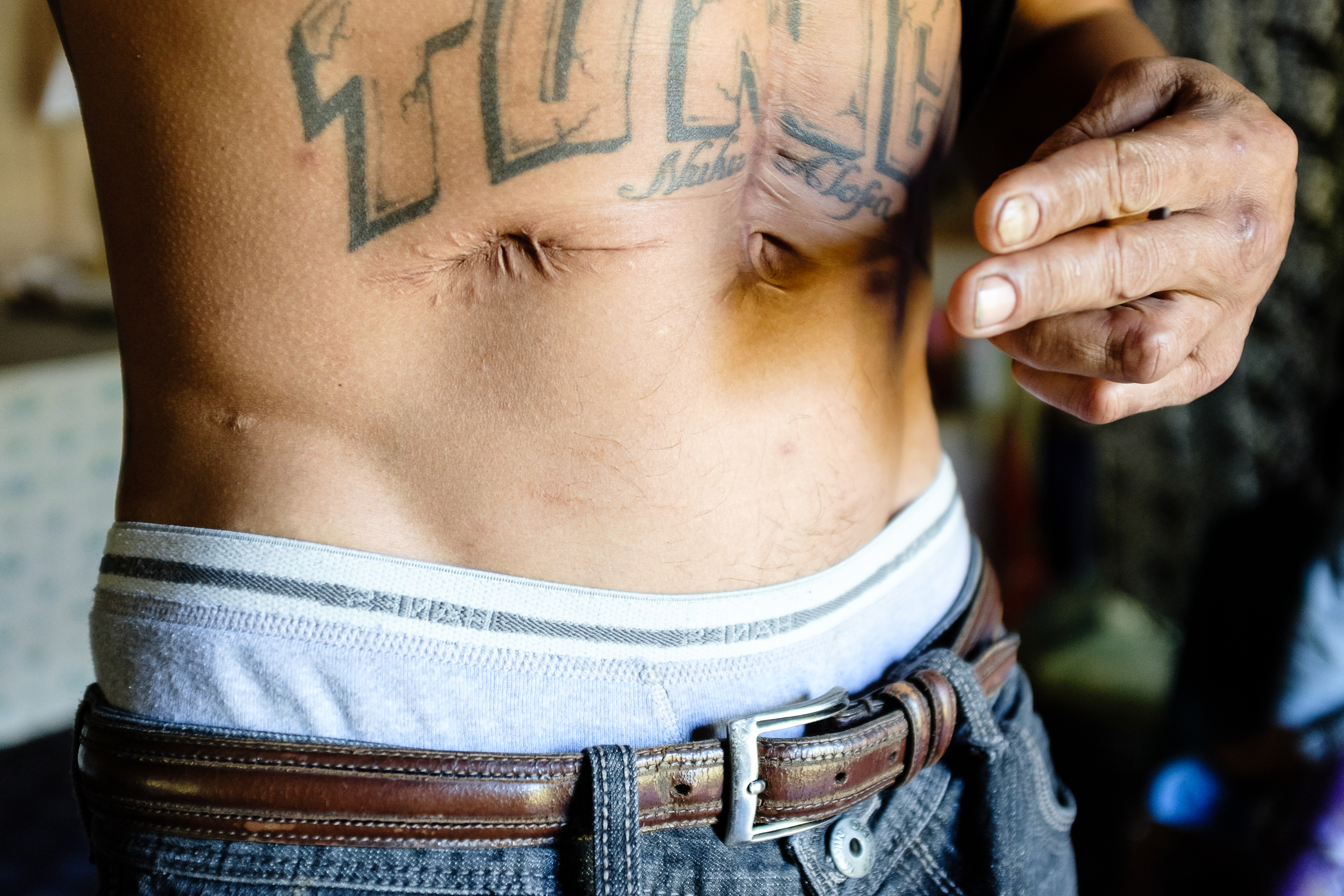 1549328764754-sione-ngaue-scars