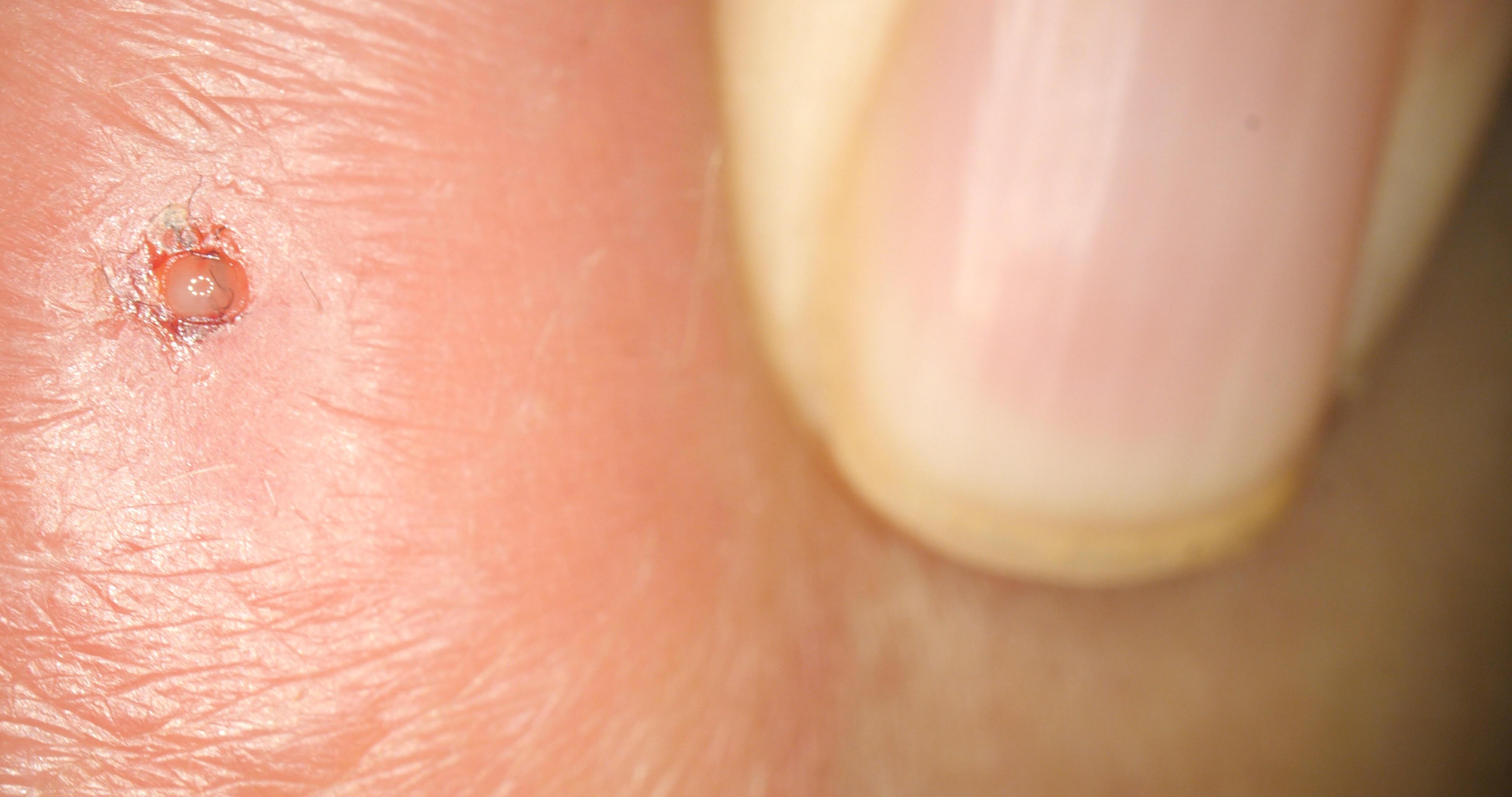 larvas de mosca no corpo humano