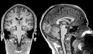 1553257321094-1551812647235-MRI-structural-scan