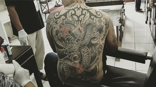 1558945104215-Tattoo-Removal-9-of-9