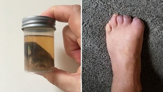 1560866659406-toes