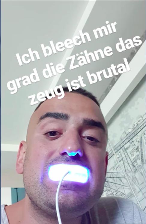 Haftbefehl Instagramstory zu Zähne aufhellen