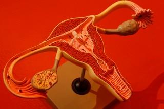 trump IUD in model of uterus