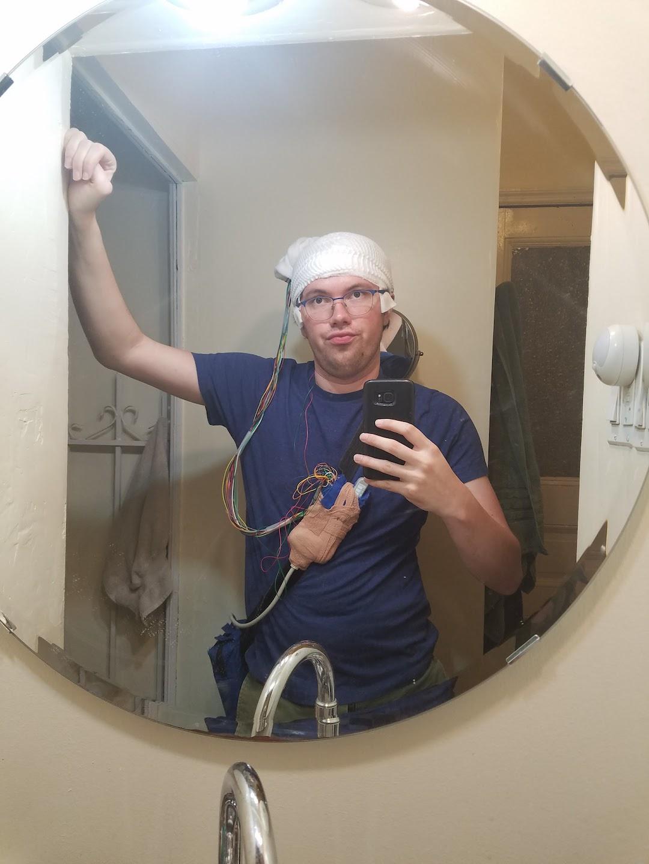Usai Operasi Angkat Secuil Otak, Pria Ini Tak Bisa Rasakan Takut!