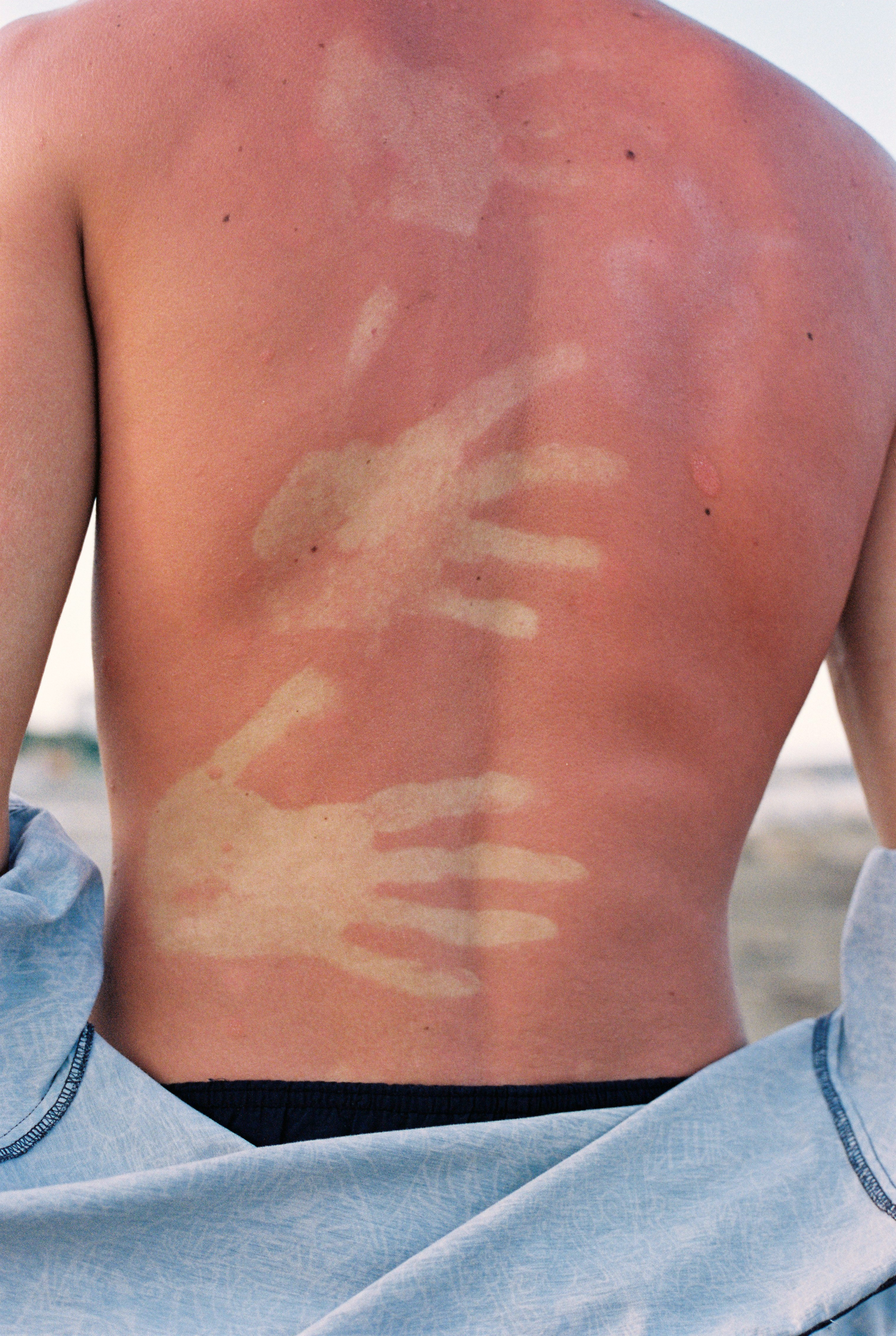 A man on the beach takes off his shirt revealing hand shaped sun burns on his back.