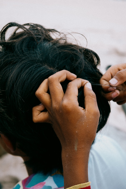 A hair is being plucked out of a boys head.