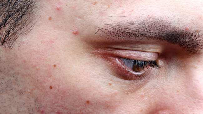 Pimples - VICE