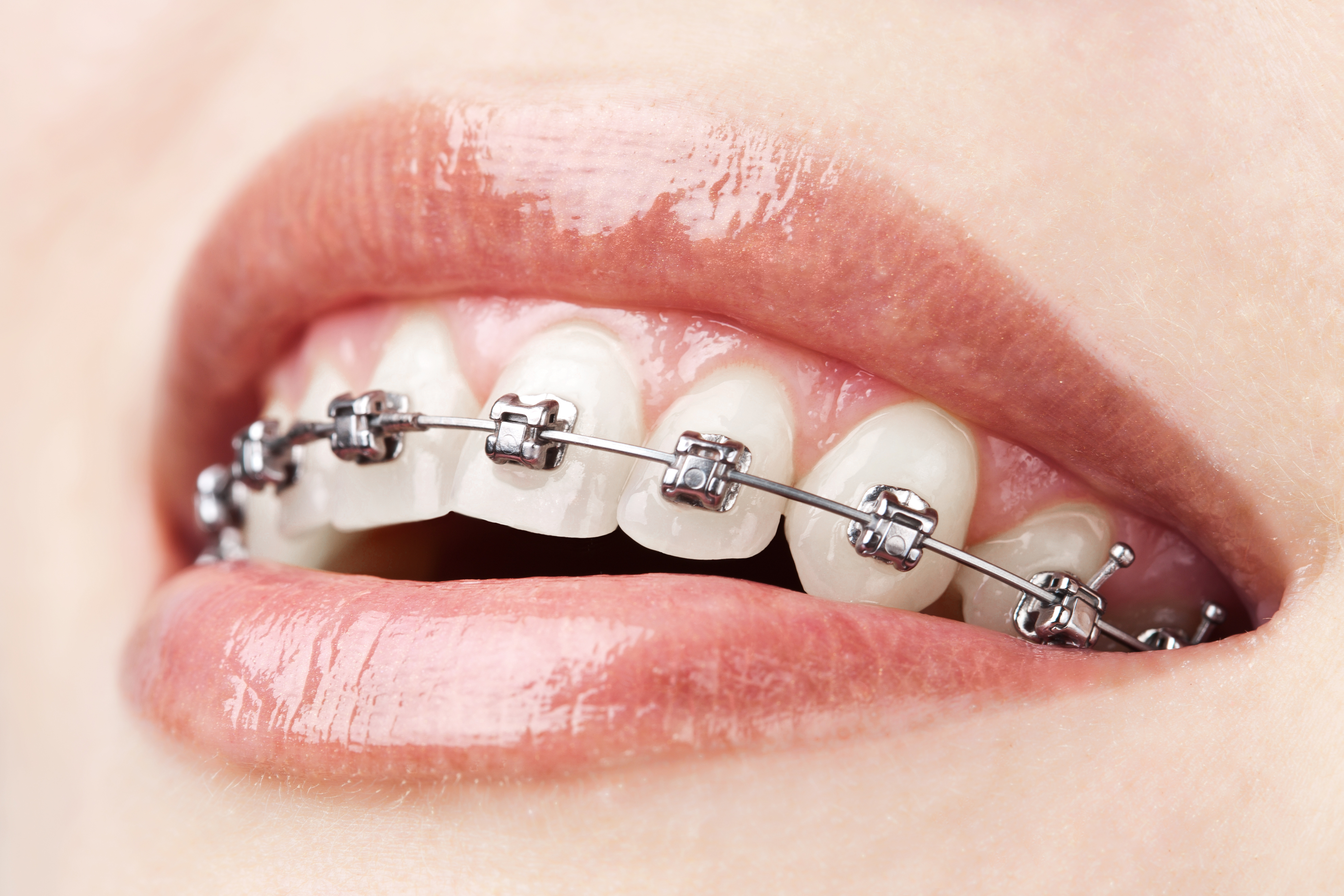 Braces can actually be bad for your teeth tonic solutioingenieria Images