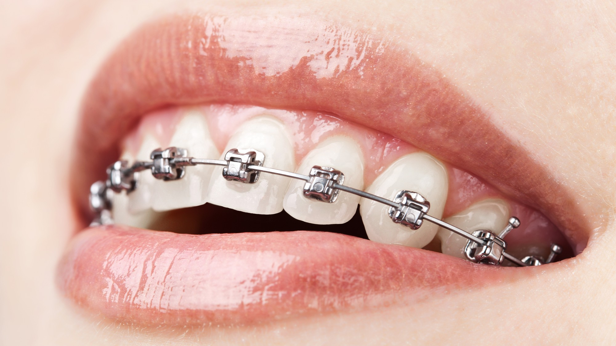 Braces Can Actually Be Bad For Your Teeth - VICE