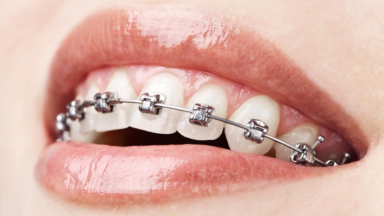 Behel Disebut Kurang Baik Buat Kesehatan Gigi Dan Gusi Vice