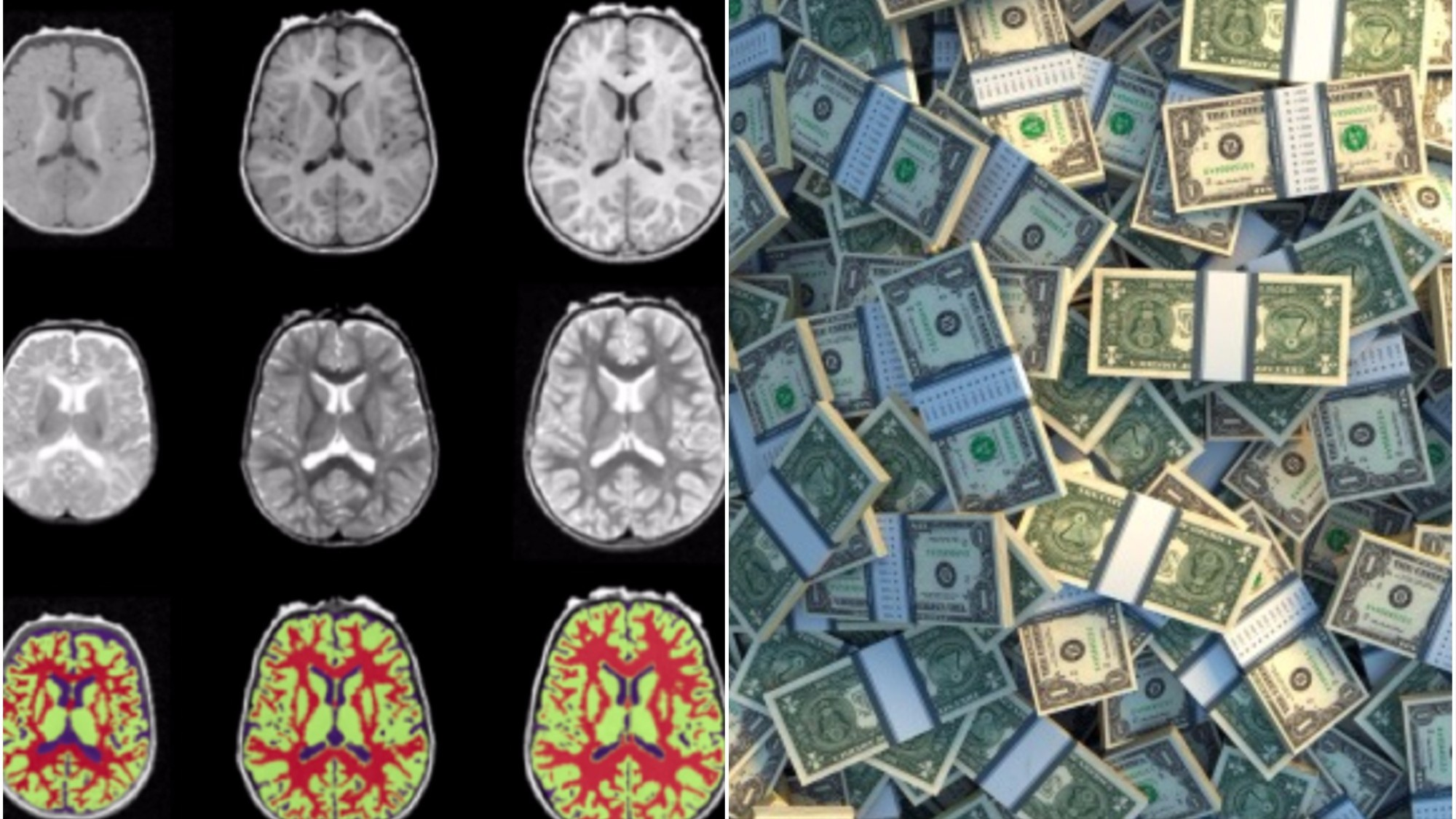 What Poverty Does To Young Brain >> The Science Of How Poverty Harms The Brain Vice
