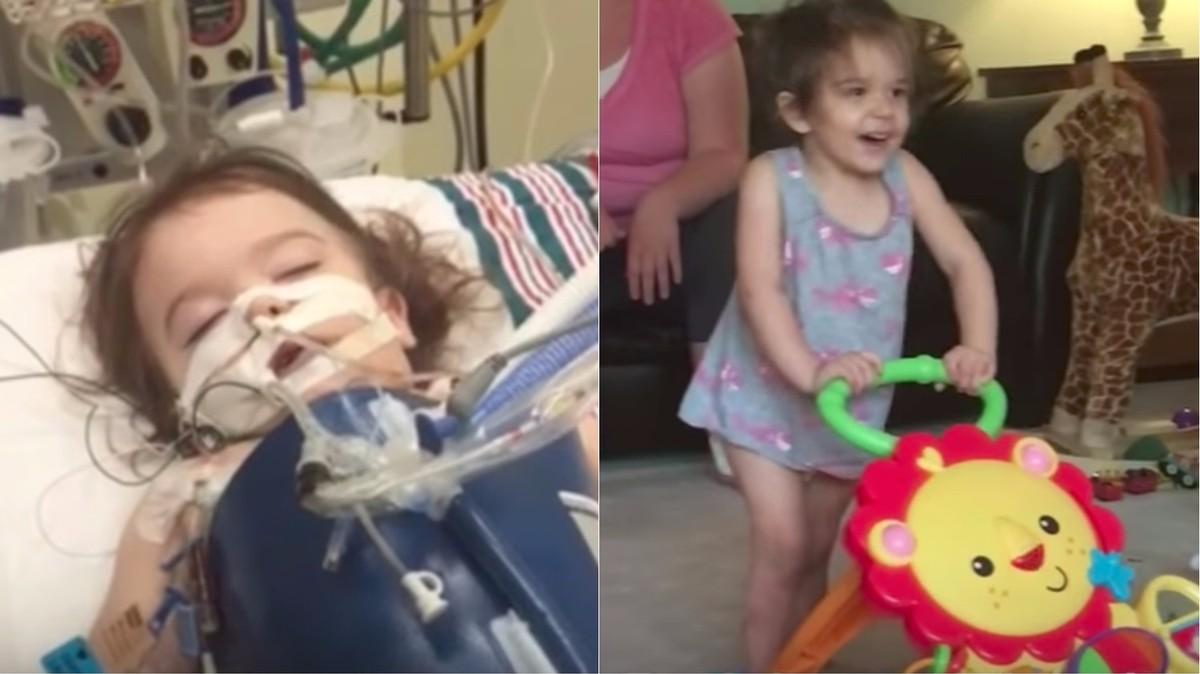 doctors reverse girl s brain damage using a hyperbaric chamber tonic