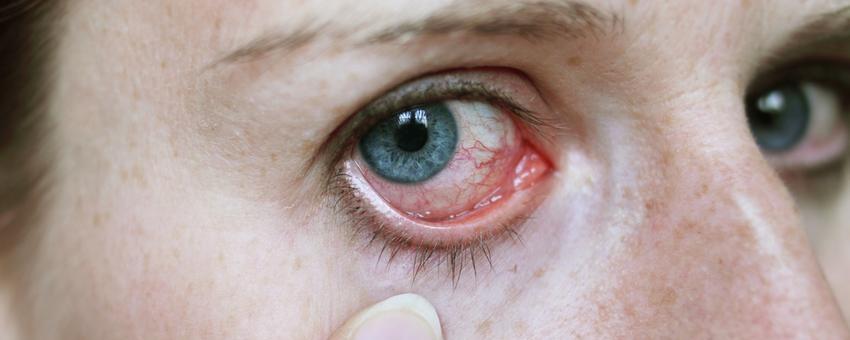 Despre ochi - Mâncărime a ochilor vedere deteriorată infecție