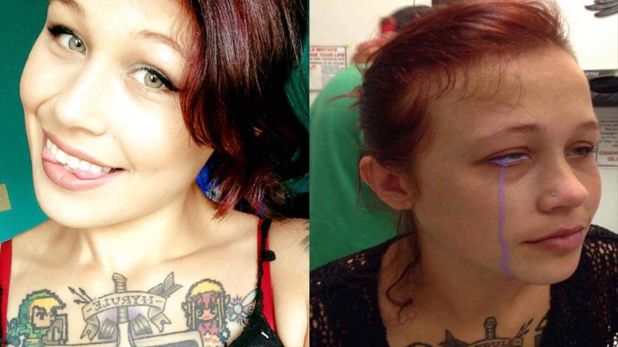 Modelka Może Stracić Wzrok Przez Spartaczony Tatuaż Oka Vice