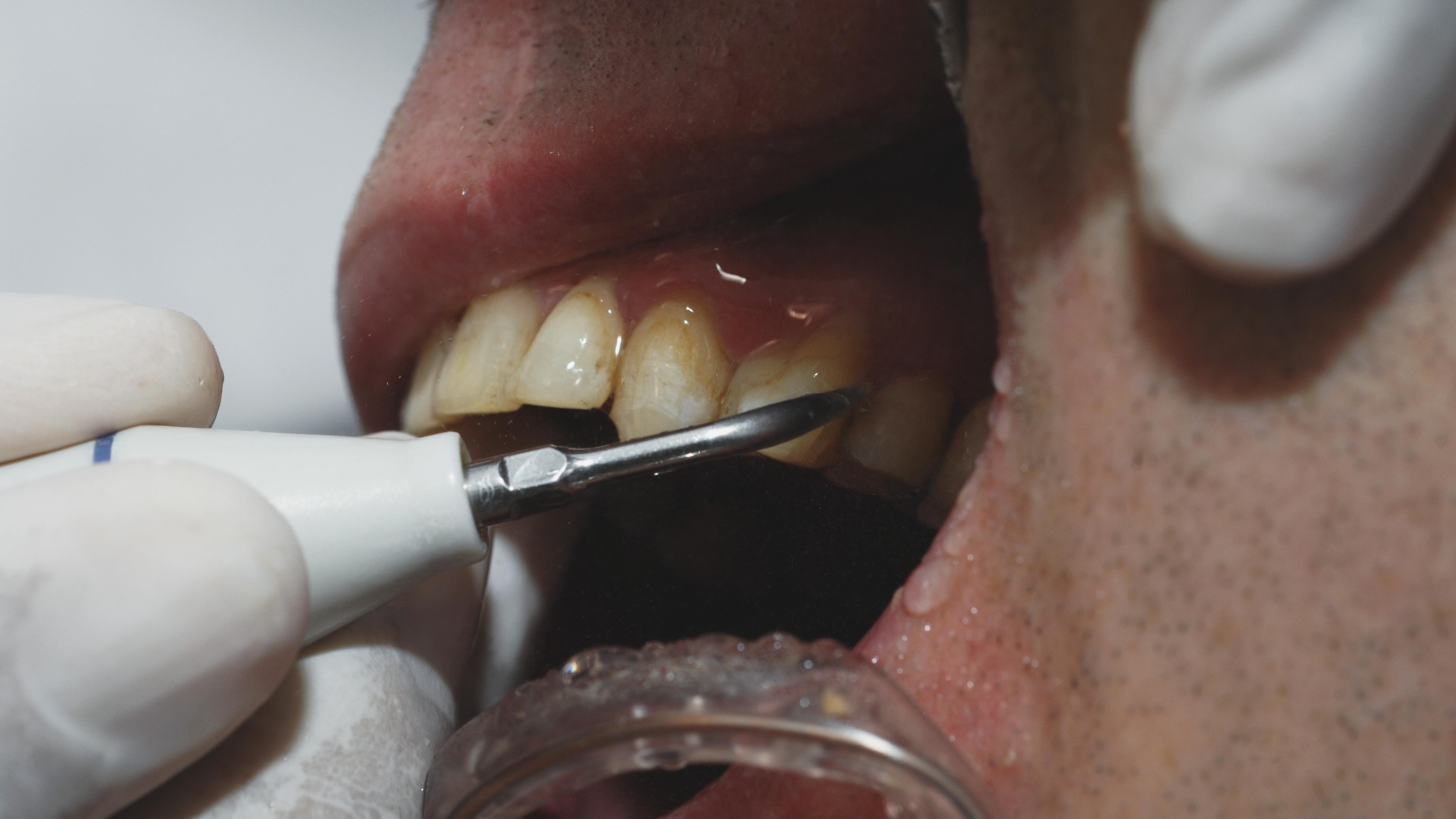 Snimci čišćenja zuba su istovremeno odvratni i umirujući