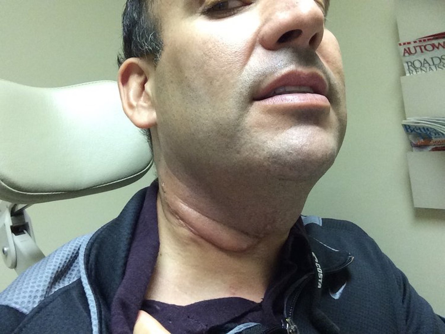 Hpv cancer of the neck - Hpv related head and neck cancer symptoms