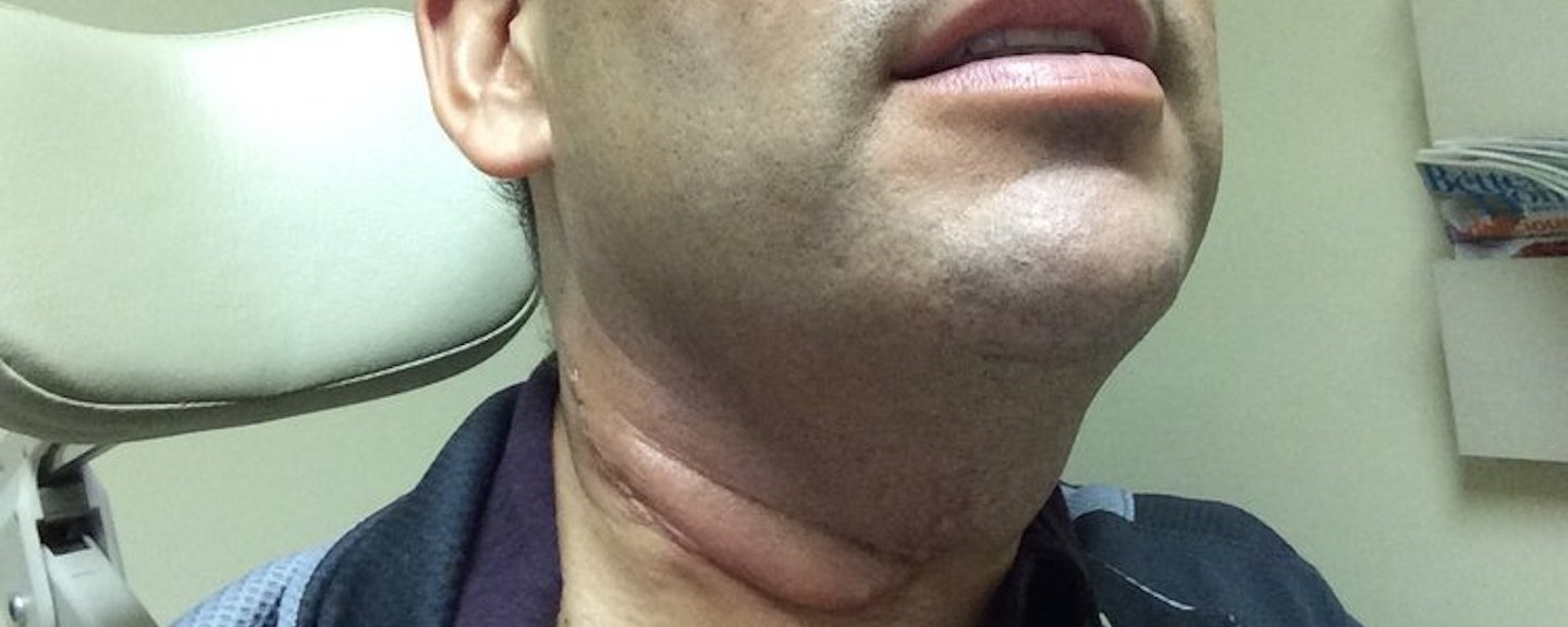Incidence hpv oropharyngeal cancer