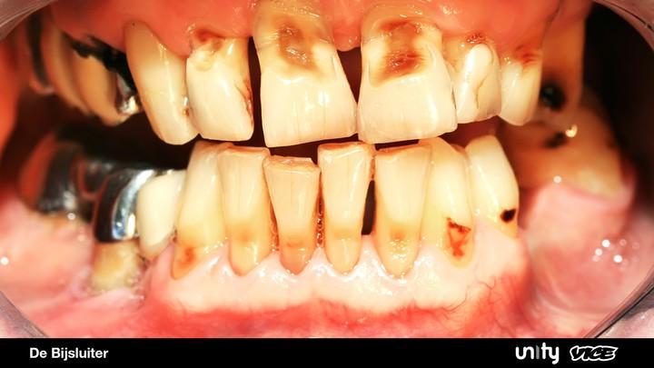 Vallen je tanden er echt uit als je te veel speed snuift?