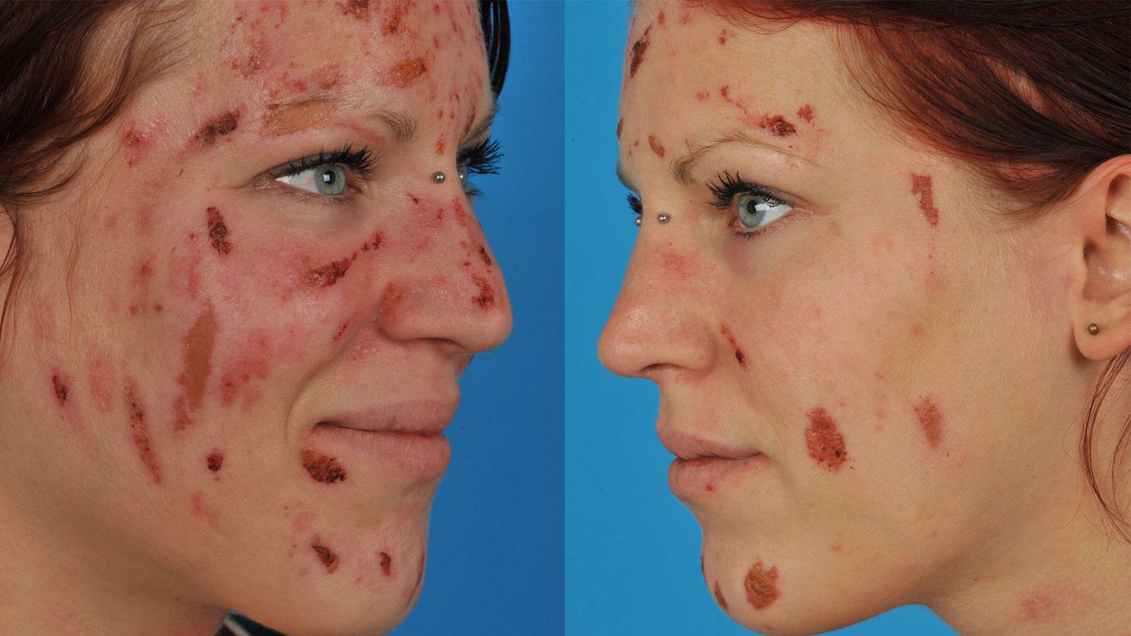 zeldzame huidziekten