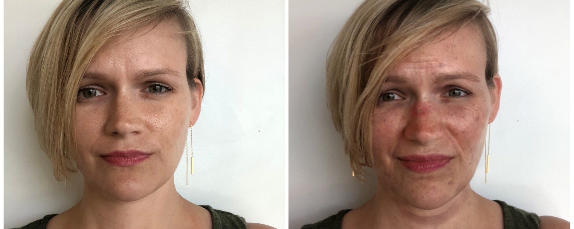 This Terrifying App Shows You What Not Using Sunscreen Will Do To Your Face