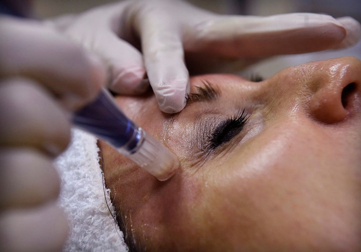 We Looked Into the Big Claims Around Blood Facials