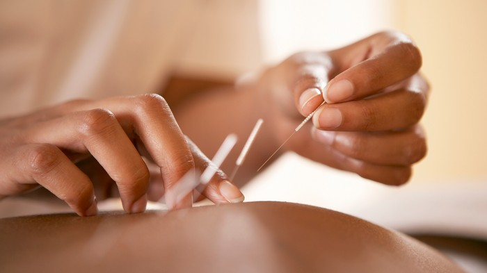 We Looked Into the Real Benefits of Acupuncture