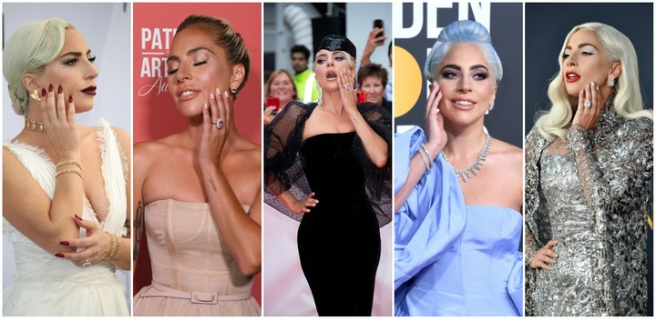 Lady Gaga's Perpetual Red Carpet Toothache: An Investigation