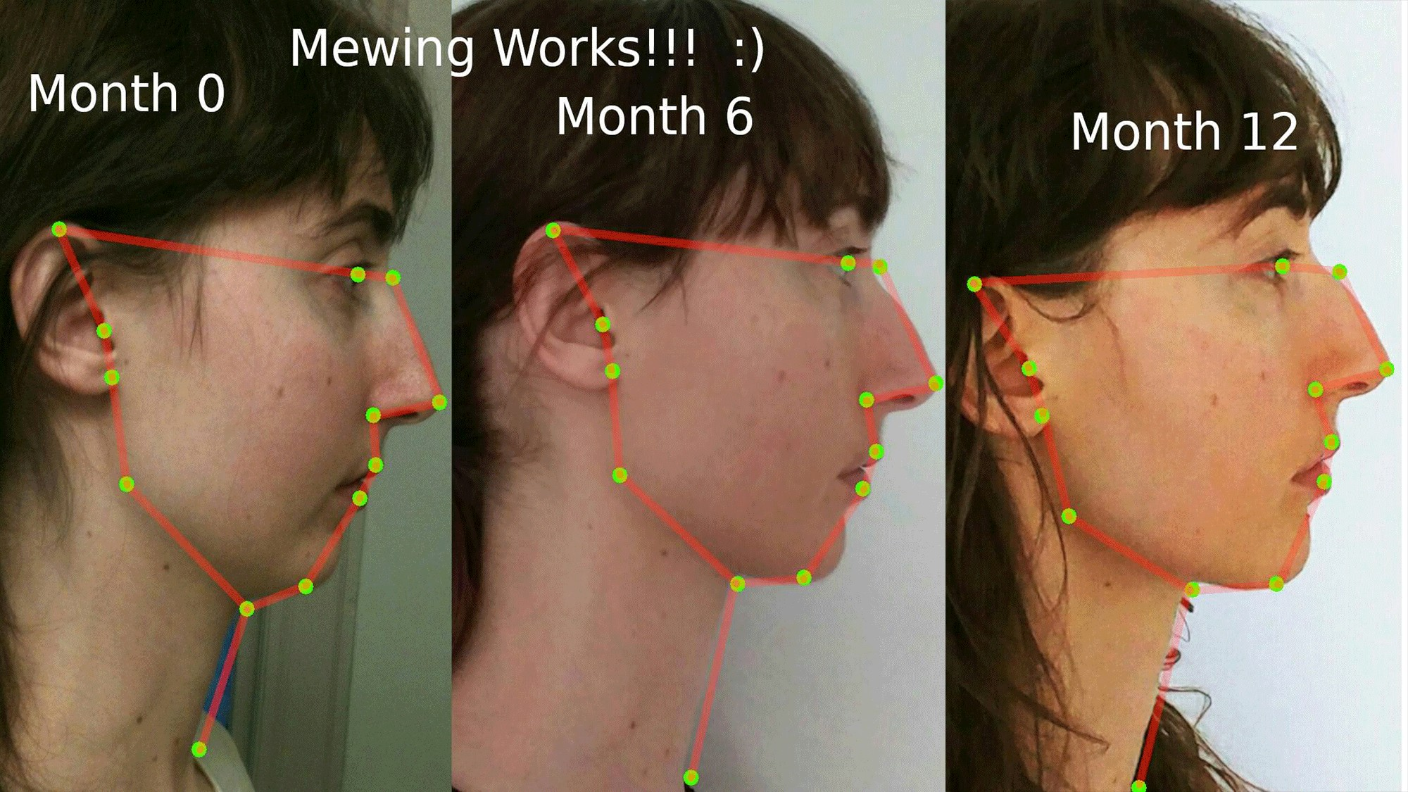 What Is Mewing and Does it Work? - VICE