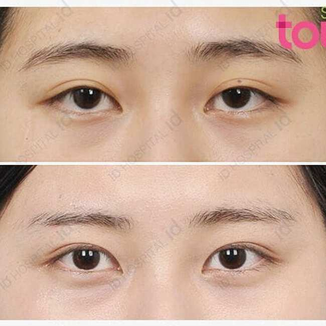 How double eyelid surgery has become a rite of passage for many