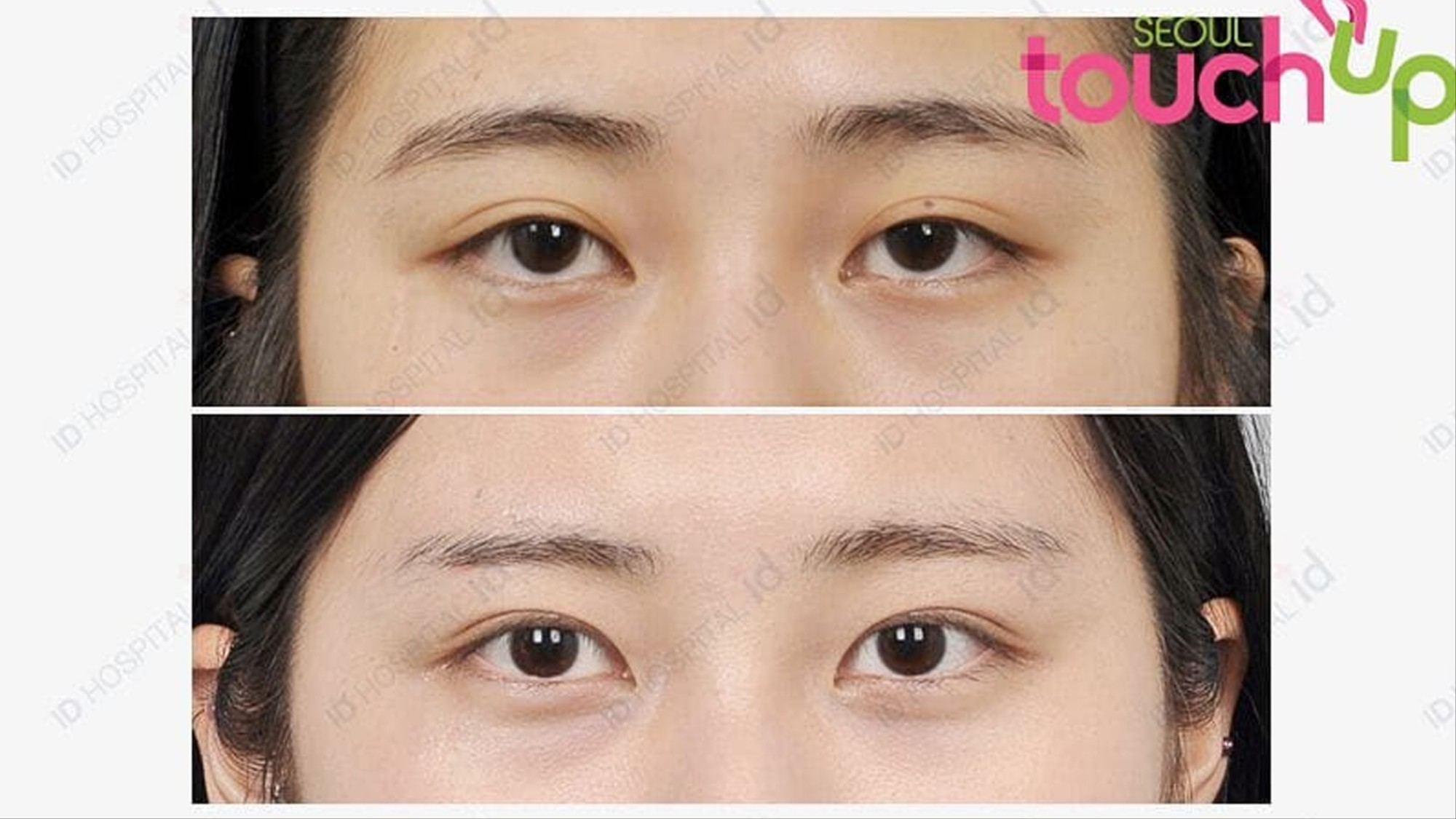 How double eyelid surgery has become a rite of passage for