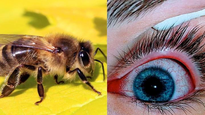 À Taïwan, des abeilles retirées de l'œil d'une femme