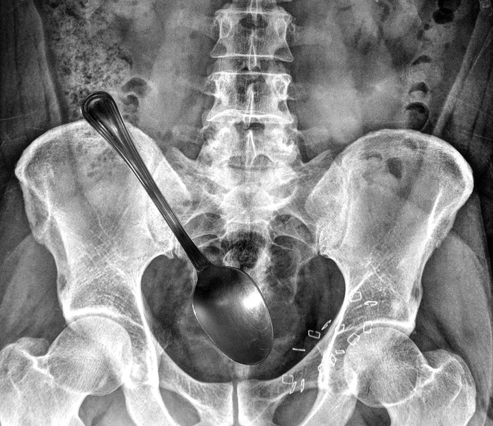 Woman Having Worst Day Ever Swallows Spoon While Trying to Dislodge Fish Bone from Throat