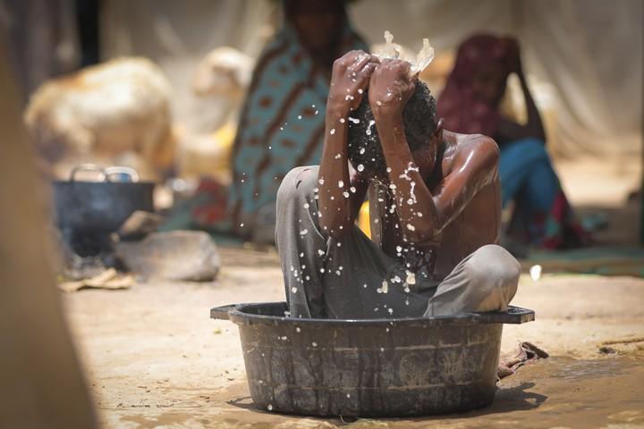 Yémen : l'horreur de la guerre en images - VICE