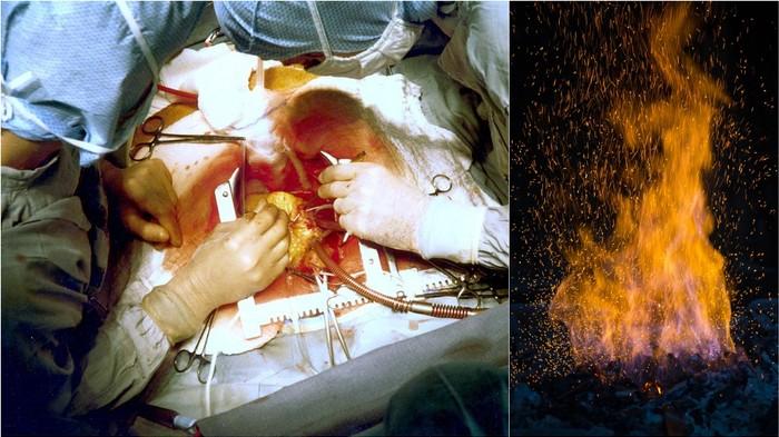 Des chirurgiens australiens ont accidentellement mis le feu à un patient