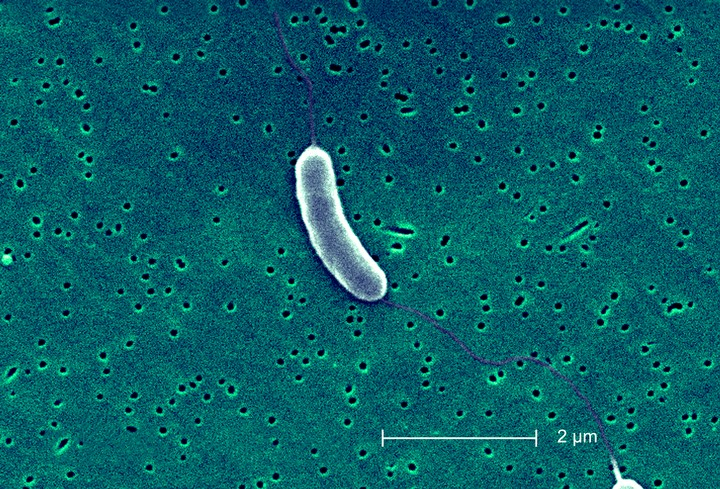 Climate Change May Be Spawning Flesh-Eating Bacteria in New Jersey - VICE